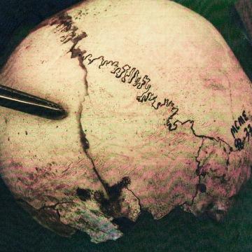 IMAGE: Crystal Reyes' cranium