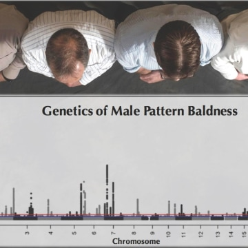 Male Pattern Baldness Genetics Will I Go Bald Genetic