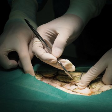 Image: Thai veterinarians operate on Omsin, a 25 year old femal green sea turtle, to remove coins from her stomach at the Faculty of Veterinary Science, Chulalongkorn University in Bangkok