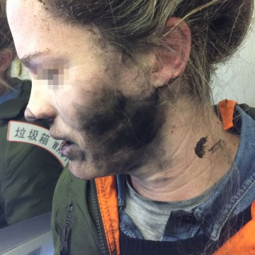 Image: A passenger was burned after the battery exploded while she was using battery-operated headphones on a flight