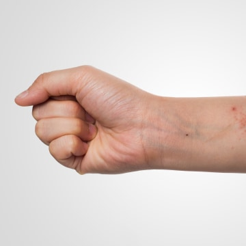 light eczema on arms