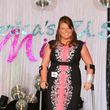Image: Ashley Marie McDonald was plunged into the world of pain back in 2011 when a bookcase fell on her foot at work.