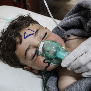 Image: A Syrian child receives treatment after an alleged chemical attack
