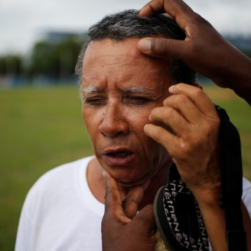 Image: Eugenio Oquendo, who is visually impaired, is checked for injuries after a fellow player fell on him during a baseball lesson at the Changa Medero stadium, in Havana