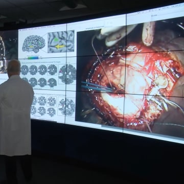 Image: Pictured in this photograph, from left to right, are neuroscientist Brad Mahon, Dan Fabbio, the patient, and neurosurgeon Web Pilcher.