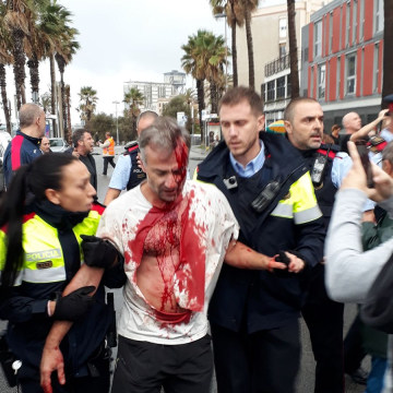 Image: A man injured in clashes with Spanish armed police is escorted away by Catalan officers in Barcelona.