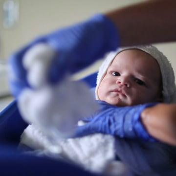 Image: An infant born with neonatal abstinence syndrome (NAS) receives a bath