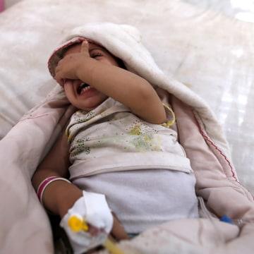 Image: Yemen cholera outbreak