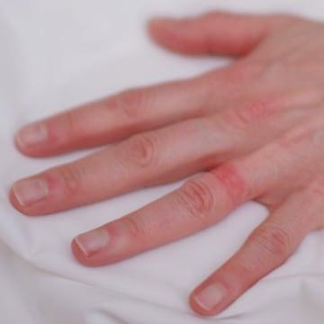 Wedding Ring Rash A Real Life Seven Year Itch Nbc News