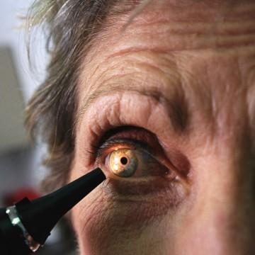 stock photography, health, medicine, eye, check-up, exam