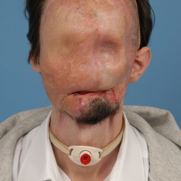 Dallas Wiens in 2010, before his face transplant.
