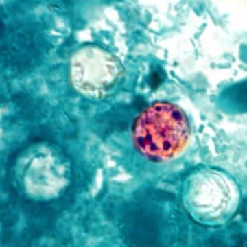 The cyclospora parasite in human stool has made about 250 people sick in the Midwest.