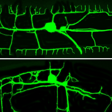 The tree-like structure of dendrites in a normal Caenorhabidtis elegans roundworm (top) and one with a defective gene (bottom).