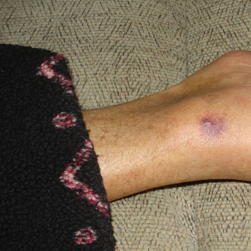 This photo provided by Patty Konietzky shows her husband's foot of what they thought was a bug bite on Sept. 22, 2013, in Ormond Beach, Fla. Patty and...