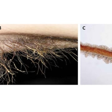 A bacterial infection of armpit hair was the cause of one man's body odor. Above, infected armpit hair (right) and view of hair under a microscope (left).