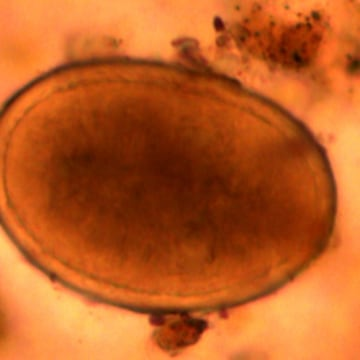 The hardy eggs of the intestinal parasite Ascaris Lumbricoides, or the roundworm, was found in samples taken from Richard III's gut.