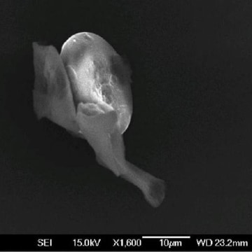 Image: Diatom