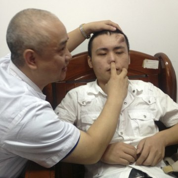 A doctor checks the infected and deformed nose of Xiaolian, before replacing it with a new nose, grown by surgeons on his forehead, at a hospital in F...
