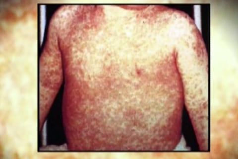 Washington Woman Dies of Measles