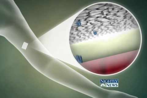 New Drug-Emitting Implant Looks to Fight Nation's Opioid Epidemic