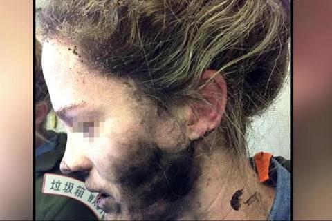 Jet Passenger's Headphones Burst Into Flames During Flight