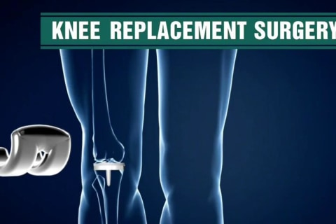 New Study Questions Effectiveness of Knee Replacement Surgery