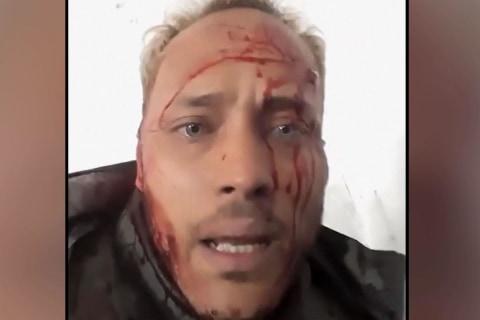 Venezuelan rebels post videos during deadly shootout