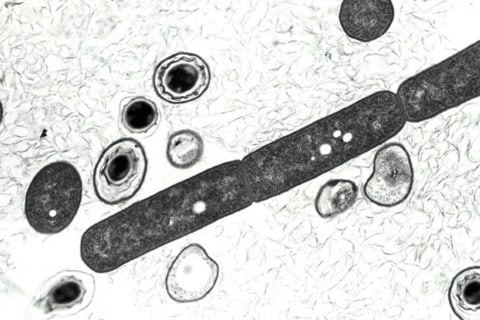 Tough Spores May Explain Anthrax Blunder, Experts Say