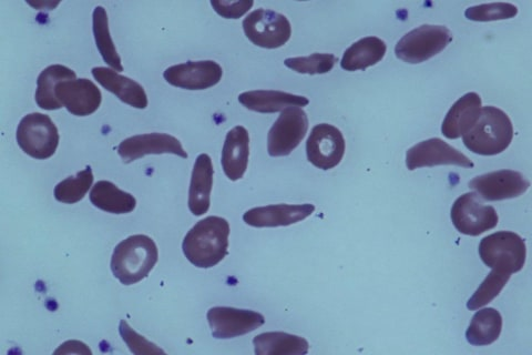Editorial: Participation Vital in Fight Against Sickle Cell