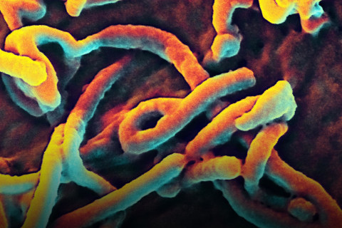 CDC Worker 'Remains Well' After Possible Ebola Exposure at Lab