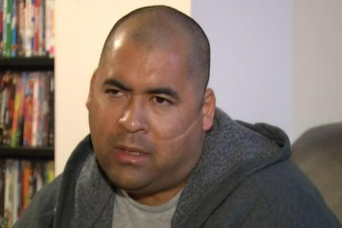 Blinded Victim Meets Hatchet Attacker: 'I Forgive Him'