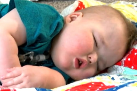 3-D Printing Technology Helps Save Young Boy's Life