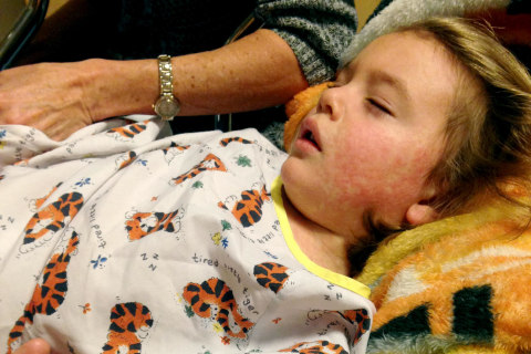 'Ow, Ow, Ow': Child's Bout With Measles Makes Parents Glad for Vaccine