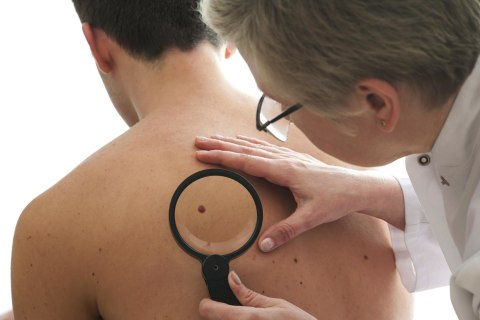 Test Your Risk of Skin Cancer With This Quiz