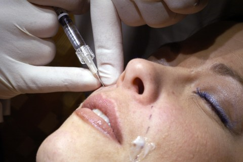 Cosmetic Face 'Fillers' Can Go Wrong, FDA Warns