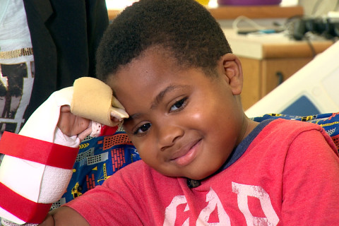 Boy, 8, Gets Double Hand Transplant in Surgical First