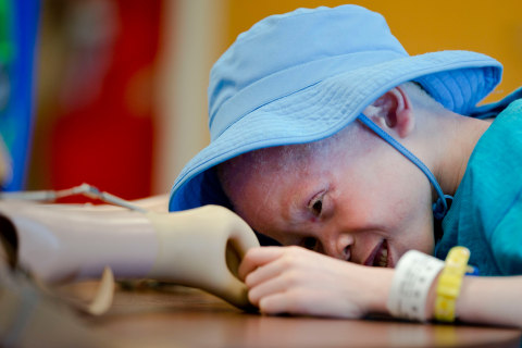 Young Albino Amputees Get Second Chance With New Limbs