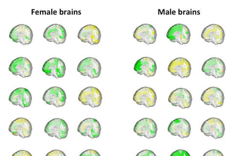 Can You Tell Which Brains Are Male? Neither Can These Scientists