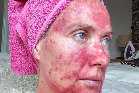 'The Sun is Not Your Friend': Woman's Tan Warning Goes Viral