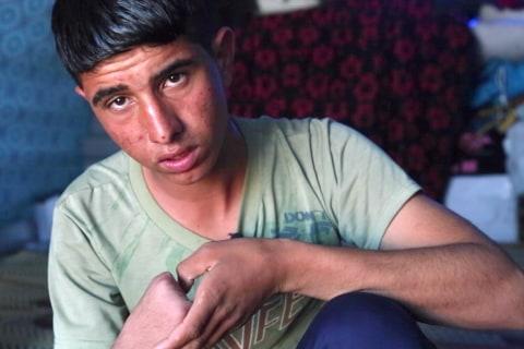 'ISIS Cut My Hand Off': Why One Boy Fled Mosul