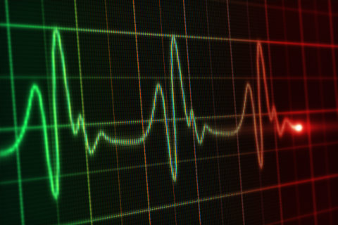 New Heart Imaging Method May Predict Heart Attacks