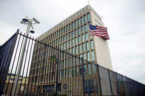 U.S. Investigating Diplomats' Hearing Loss in Cuba
