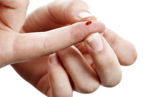 Will High-Tech Skin Put an End to Needle Sticks for Diabetes?