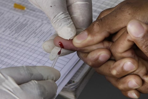 Americans getting HIV diagnoses quicker, but not fast enough