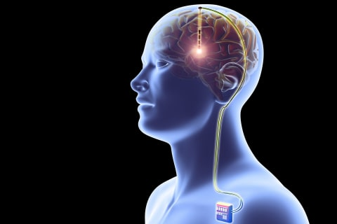 Memory-boosting brain implants are in the works. Would you get one?
