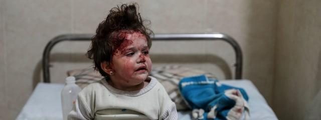 05ffba360710ff ... Children among the injured in besieged Damascus suburb ...