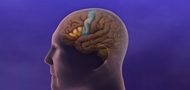 New Alzheimer's drug may slow decline, researchers report