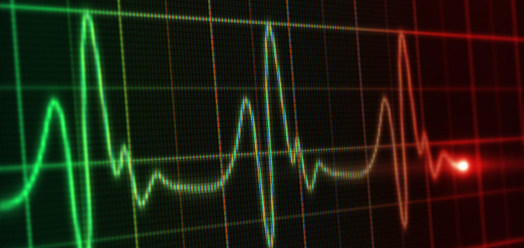 The Century Old Heart Test That May Predict Sudden Cardiac Death