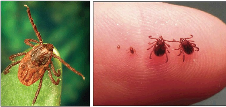 New tick causes epidemic of Rocky Mountain spotted fever