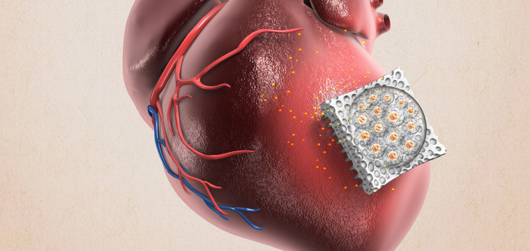 This needle-studded patch could help heart patients heal